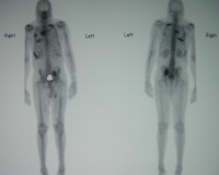 bone scan showing metastases